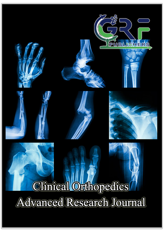 Safety of Intra-Articular Polyacrylamide Hydrogel for the Treatment of Knee Osteoarthritis Symptoms: A Retrospective Case Series